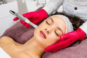 Microneedling-Behandlung bei Cosmetic creativ